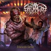 EXECRACION - CD - Dilatacion Carnal