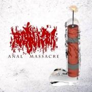 FECALIZER / ANALKHOLIC - split CD -