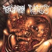 PULMONARY FIBROSIS / FETAL DOMINATION - split CD -