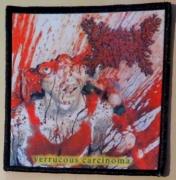 VISCERA INFEST - Verrucous Carcinoma - printed Patch