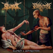 $LUTROT / NEPHRECTOMY - split MCD -